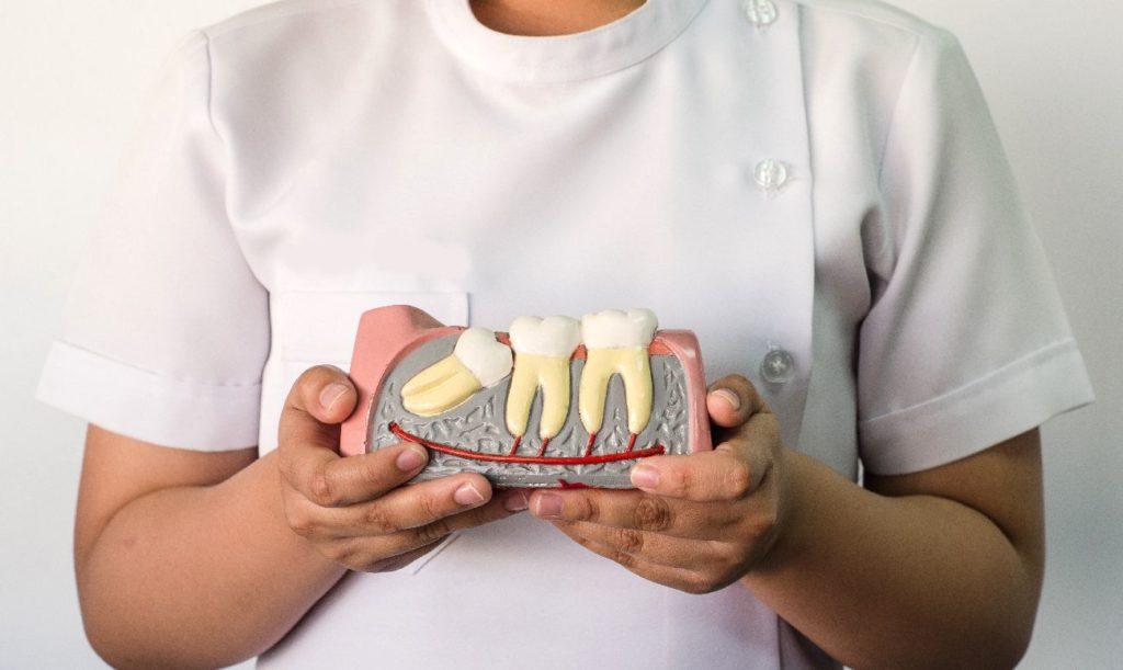 Когда требуется удаление зуба мудрости?