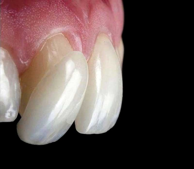 https://lapchenko.clinic/photos/ds/dental-veneers.jpg